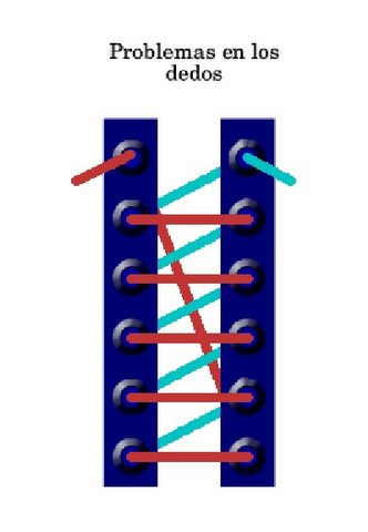 Lazada de cordones para atar zapatillas - Problemas en los dedos